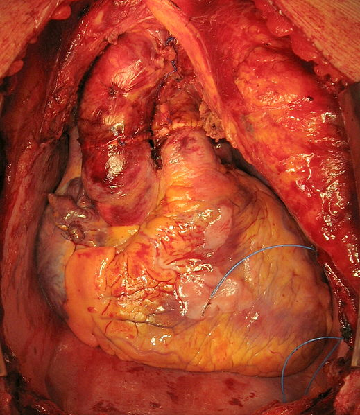 Heart after Transplant Surgery